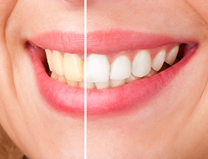 Closeup smile half before and half after whitening