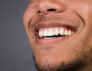 man smiling teeth