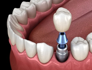 The various parts of a dental implant