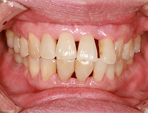 Closeup of smile with receeding gums