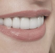 Closeup of healthy happy smile