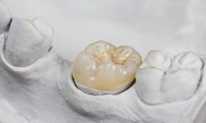 How Much Is A Crown >> How Much Does A Dental Crown Cost Premier Dental Care Blog