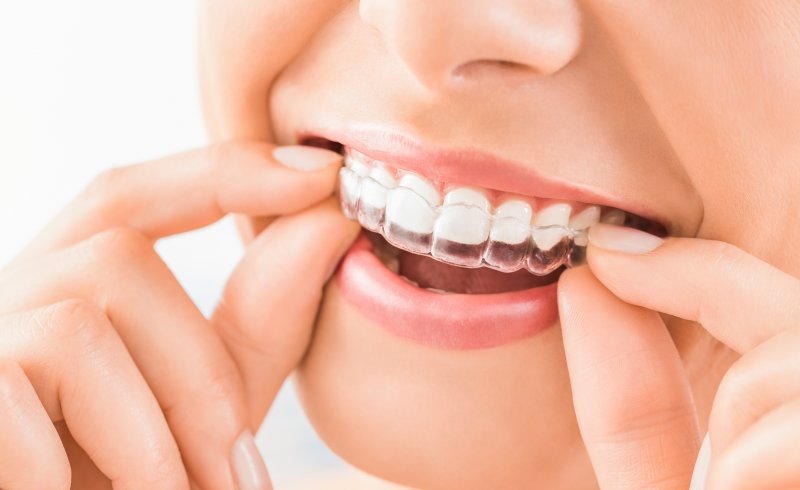 an up-close look at a woman inserting an Invisalign aligner